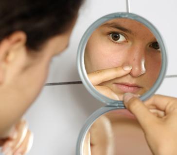 Cara hilangkan komedo tanpa harus ke salon